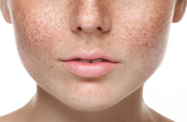 علت به وجود آمدن لکه های قهوه ای روی پوست